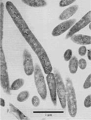 Image of bacteria (bacillus)