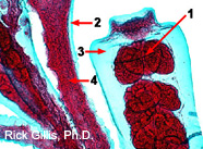 Image of hydrozoan gonangium